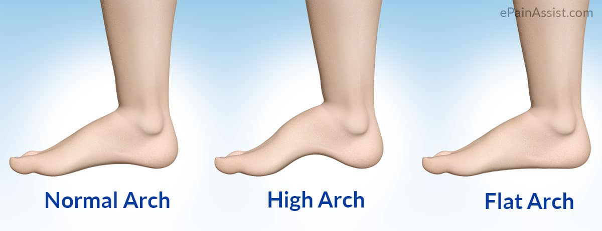 Flat Feet Vs High Foot Arch